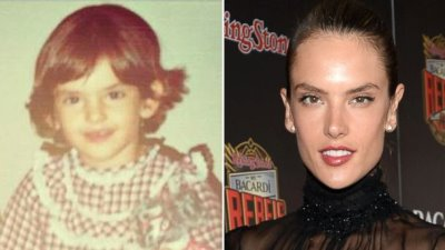 alessandra ambrosio ear-pinning surgery before and after