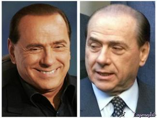 berlusconi hair transplant before and after