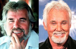 kenny rogers plastic surgery - before and after - photos