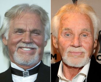 kenny rogers plastic surgery - before and after