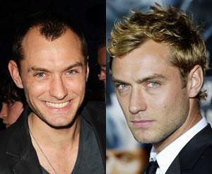 Jude Law Hair Transplant: Before and After Photos