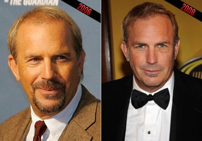 kevin costner hair transplant before and after