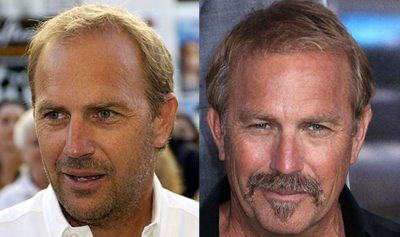 kevin costner hair transplant then and now