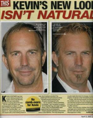 kevin costner hair transplant now and then