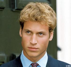 prince william hair transplant
