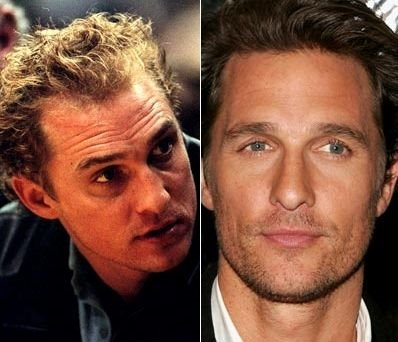 matthew mcconaughey hair transplant before and after