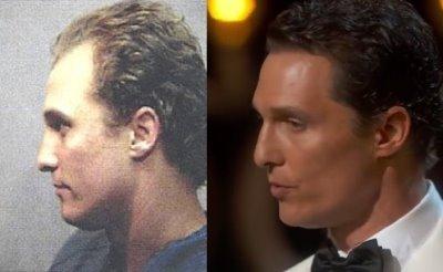 Matthew McConaughey Hair Transplant Proof