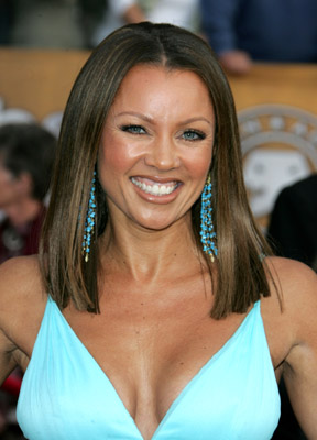 vanessa williams plastic surgery