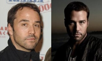 jeremy piven hair transplant before and after photos