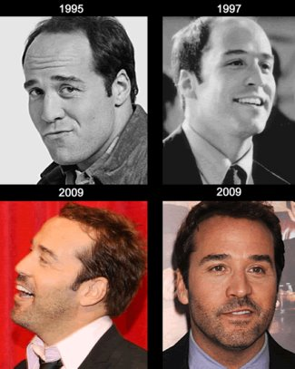 jeremy piven hair transplant over the years transformation