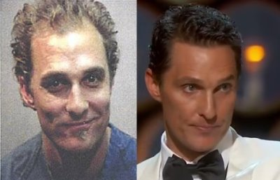 Matthew McConaughey Hair Transplant Then and Now