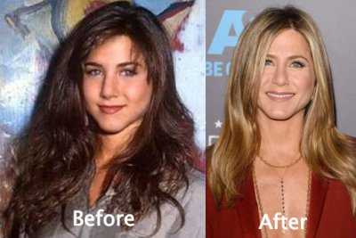 actress plastic surgery list - aniston before and after nose job