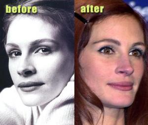 actress plastic surgery julia roberts