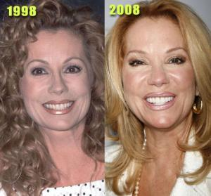 actress plastic surgery kathie lee gifford