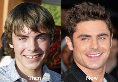 zac efron nose job before and after