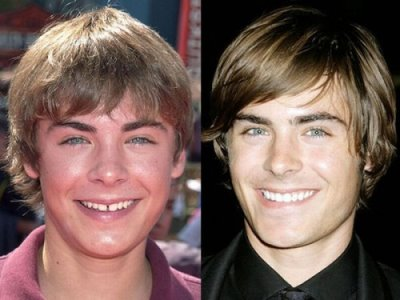 zac efron plastic surgery or not