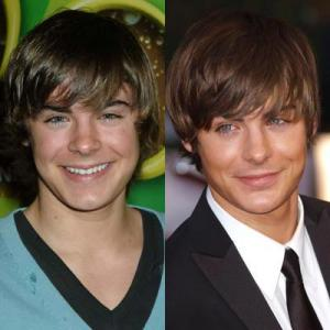 zac efron plastic surgery before and after