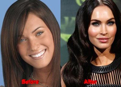 megan fox plastic surgery good or bad