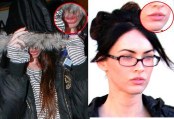 megan fox plastic surgery lips