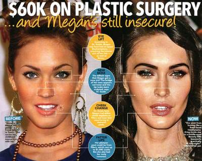 megan fox plastic surgery list of procedures