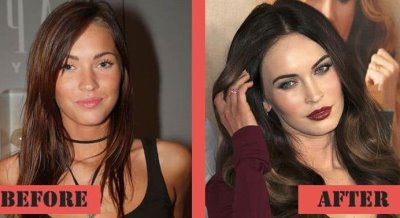 megan fox plastic surgery list before and after photos