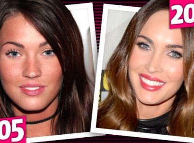 megan fox plastic before after