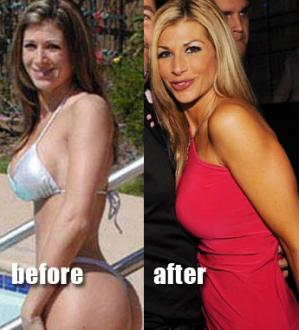 alexis bellino plastic surgery before and after