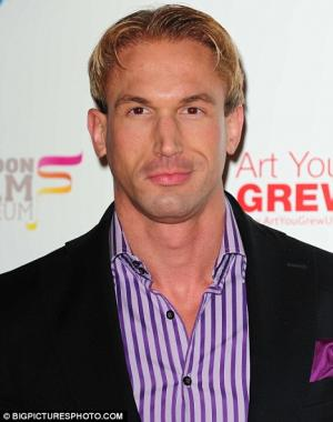 christian jessen hair loss then and now
