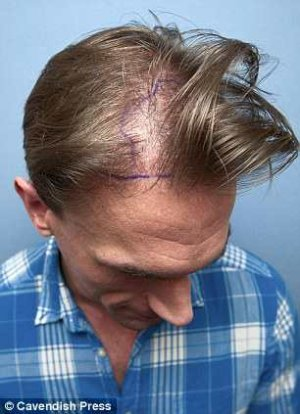 dr christian jessen before hair transplant