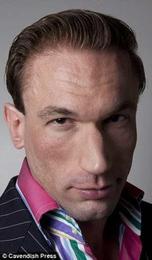 dr christian jessen hair transplant - after surgery