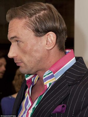 dr christian jessen hair transplant - before after surgery photos