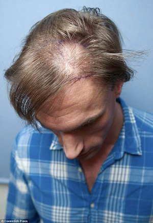 dr christian jessen hair transplant - before and after photos