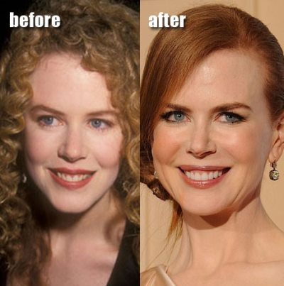 nicole kidman facelift before and after photos