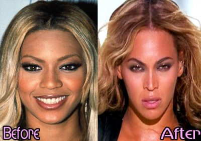beyonce plastic surgery nose job before and after