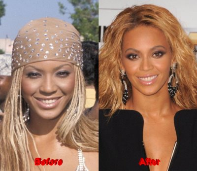beyonce plastic surgery then and now