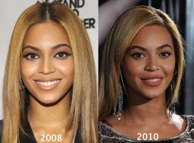 beyonce plastic surgery lip enhancement