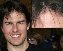 tom cruise hair transplant