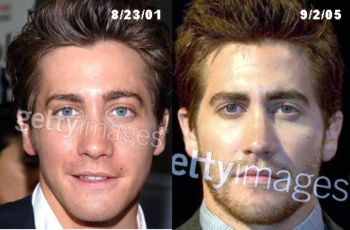 jake gyllenhaal plastic surgery nose lift before and after