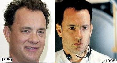 tom hanks hair transplant before and after