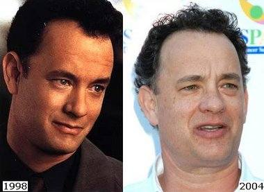 tom hanks hair transplant surgery
