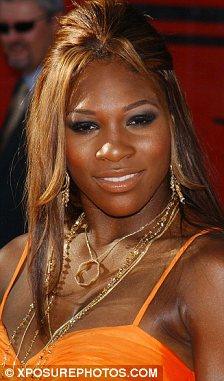 Serena Williams Plastic Surgery before and after