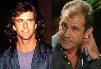 mel gibson bald hair loss before and after