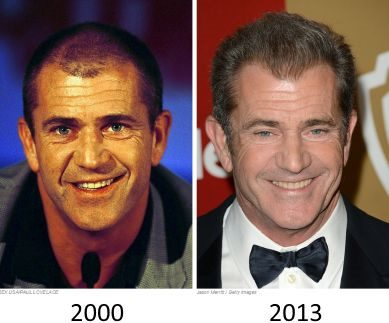 mel gibson hair transplant before and after - 2000 to 2013