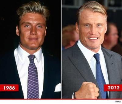 Dolph Lundgren Plastic Surgery before after