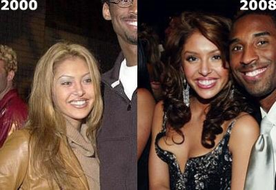 vanessa bryant nose job plastic surgery before and after