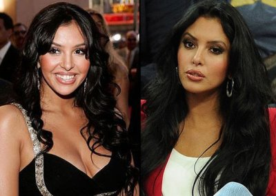 vanessa bryant plastic surgery 2017 update before and after