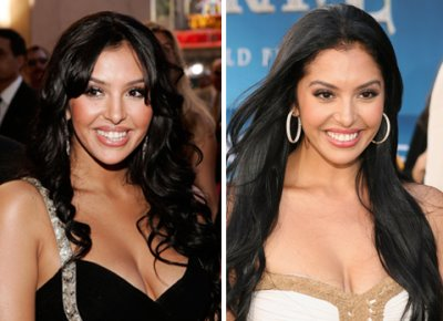vanessa bryant plastic surgery before and after2