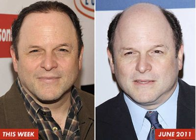 jason alexander hair transplant farrell hair replacement