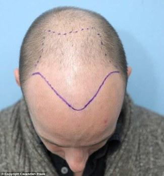 Peter Waterfield bald hair transplant procedure