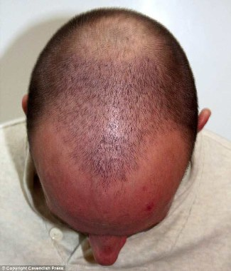 Peter Waterfield hair transplant - before and after photos